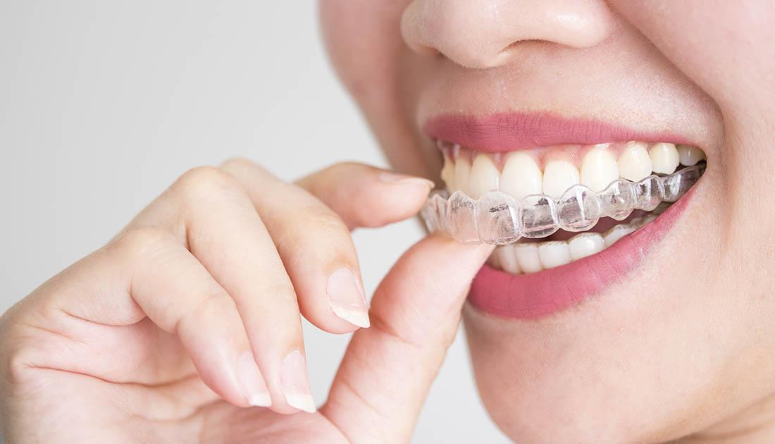 ¿Qué tipo de ortodoncia debería tener?