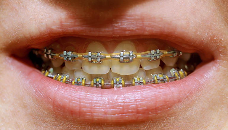 Ortodoncia en adultos ¿Existe una edad límite?
