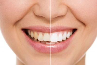 Clínica Dental Sevilla | Blanqueamiento dental