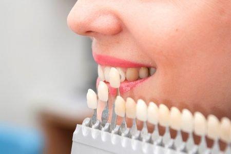 Clínica Dental Sevilla | Carillas de porcelana