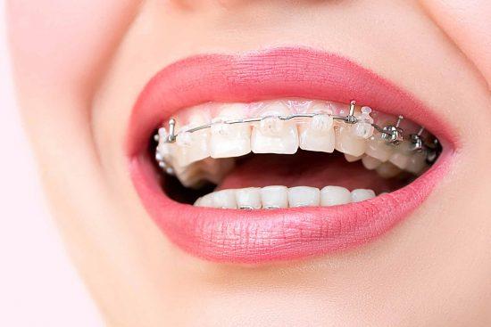 Clínica Dental Sevilla | Especialistas en ortodoncia estética