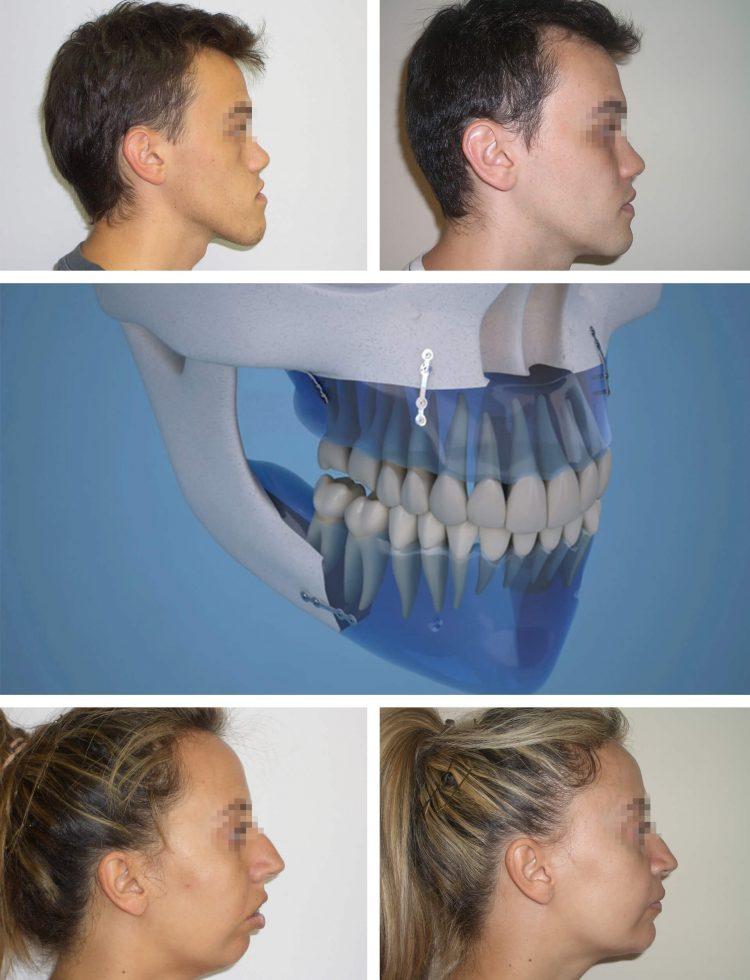 Clínica Dental Sevilla | Tratamiento cirugía ortognática