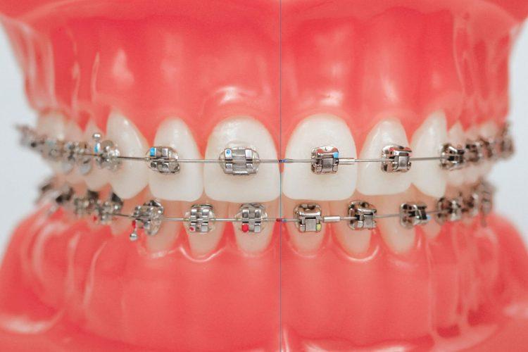 Clínica Dental Sevilla | Tratamiento Damon