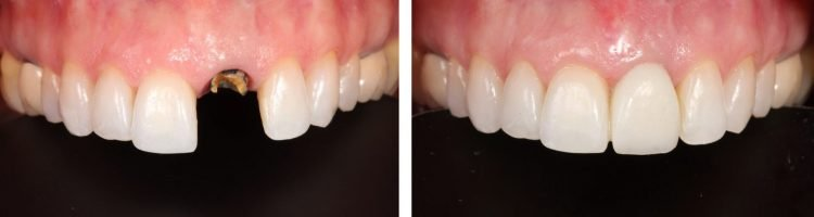 Clínica Dental Sevilla | Tratamiento de implantes dentales