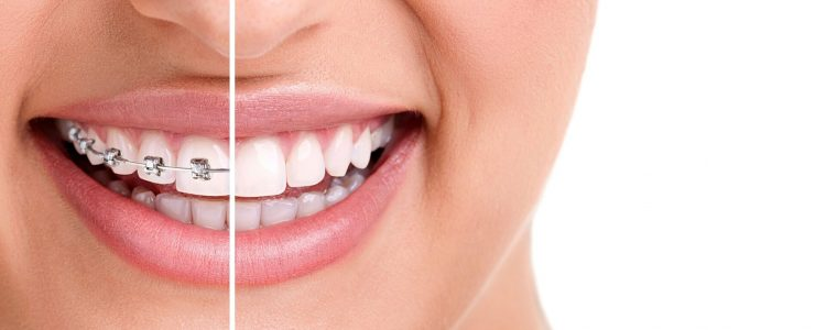 Clínica Dental Sevilla | Tratamiento Invisalign